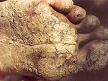 Arsenicosis at feet; Advanced case of hyperkeratosis on the sole and toes resembles fish scales