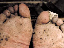 Arsenicosis at feet; Advanced case of hyperkeratosis on the sole and toes resembles fish scales (© China Medical University, Shenyang)